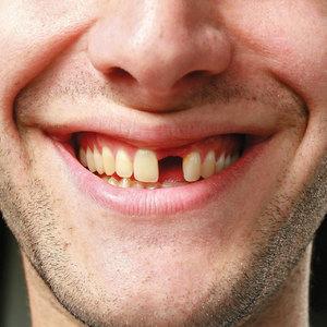 К чему снятся выпавшие зубы: толкование по соннику